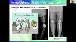 Walk Away From Hip & Knee Pain - Dr. Harpreet Bawa